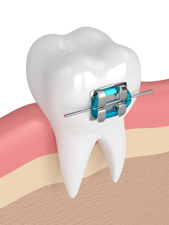 3d render of tooth with brace in gums over white background