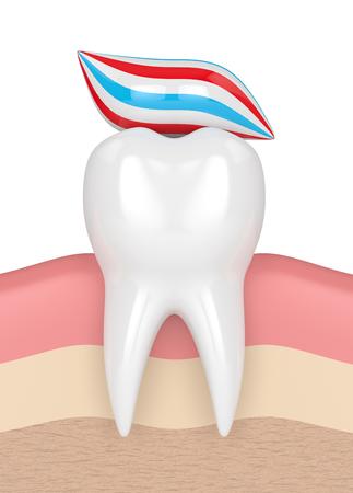 3d geef van tand met dosis tandpasta in gommen terug Stockfoto - 92293456