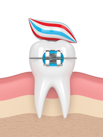 3d render of tooth with brace and toothpaste in gums