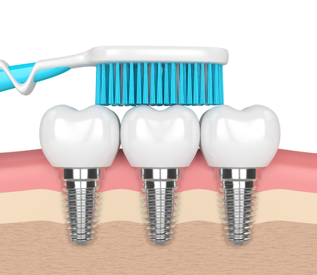 3d render of dental implants in gums with toothbrush Banque d'images