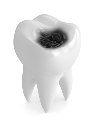 3d render of tooth with decay isolated over white background Stockfoto