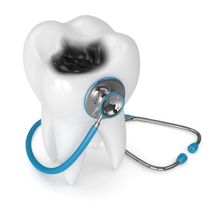 3d geef van tand met bederf en stethoscoop terug die over witte achtergrond wordt geïsoleerd