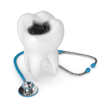 3d render of tooth with decay and stethoscope isolated over white background