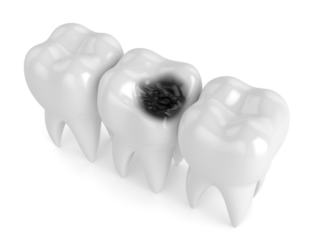 3d render of teeth with decay in row isolated over white background Stock Photo