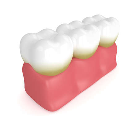 3d render of teeth with plaque and tartar over white background