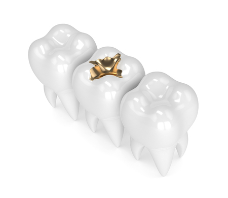 3d render of teeth with dental gold filling in row
