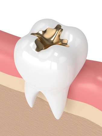 3d render of tooth with dental gold filling in gums