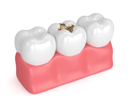3d render of teeth with dental gold filling in gums