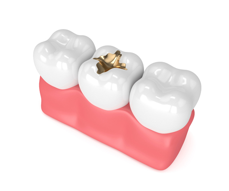3d render of teeth with dental gold filling in gums