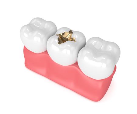 3d render of teeth with dental gold filling in gums Standard-Bild - 93241540
