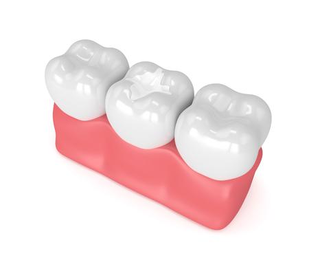 흰색 배경 위에 잇몸에 채우는 치과 합성과 치아의 3d 렌더링