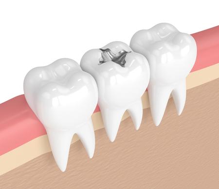 3d rendono dei denti con l'amalgama dentale che riempie in gomme