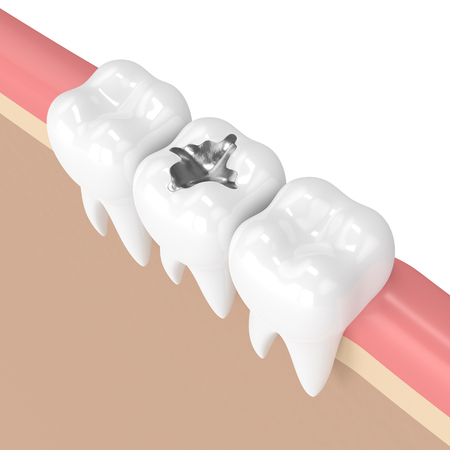 3d render of teeth with dental amalgam filling in gums
