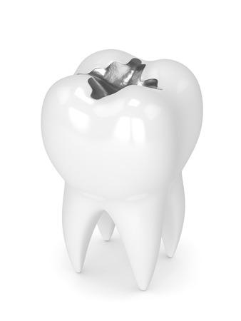 3d rendono del dente con l'amalgama dentale che riempie sopra il fondo bianco Archivio Fotografico - 93397328