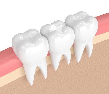歯茎の歯科複合充填と歯の3Dレンダリング