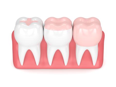 白い背景の上にインレイ、オンレイとクラウン充填と歯の3Dレンダリング