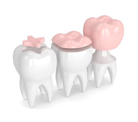 3d übertragen von den Zähnen mit dem Inlay, Onlay und Krone, die über weißen Hintergrund füllen Standard-Bild