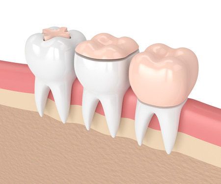 3d render of teeth with inlay, onlay and crown dental filling in gums