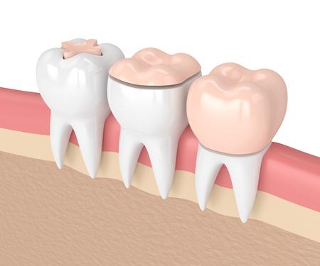 Rendu 3d des dents avec incrustation, incrustation et couronne, obturation dentaire dans les gencives Banque d'images - 93557239