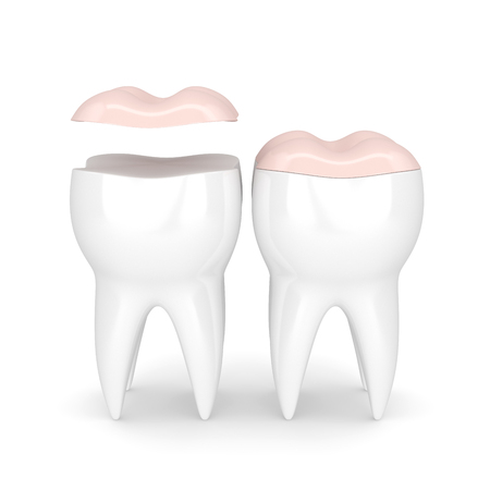 3d render of teeth with dental onlay filling over white background Stock Photo