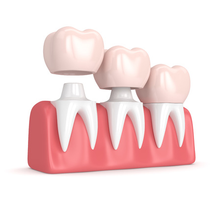 3d render of  replacement crowns cemented onto reshaped teeth in gums  Stock Photo