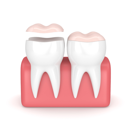 3d render of teeth with dental onlay over white background Stock Photo