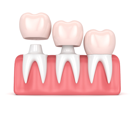 3d render of  replacement crowns cemented onto reshaped teeth in gums over white background