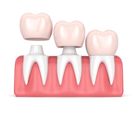 3d rendono delle corone della sostituzione cementate sui denti rimodellati in gomme sopra fondo bianco Archivio Fotografico - 93760144