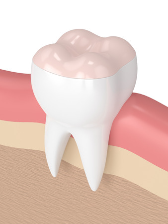 3d render of tooth with dental onlay filling in gums