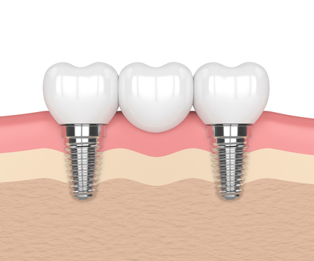 3d render of implants in gums with dental bridge