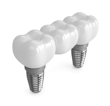 3d render of implants with dental bridge over white background