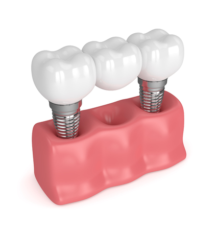 3d render of implants in gums with dental bridge isolated over white background Stock Photo