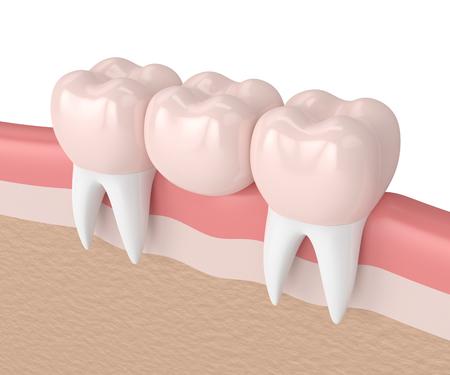 잇몸에서 치과 크라운 치과 다리의 3d 렌더링 스톡 콘텐츠