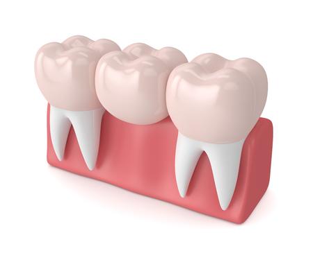 3d übertragen von der zahnmedizinischen Brücke mit zahnmedizinischen Kronen im Zahnfleisch, das über weißem Hintergrund lokalisiert wird Standard-Bild - 94070484