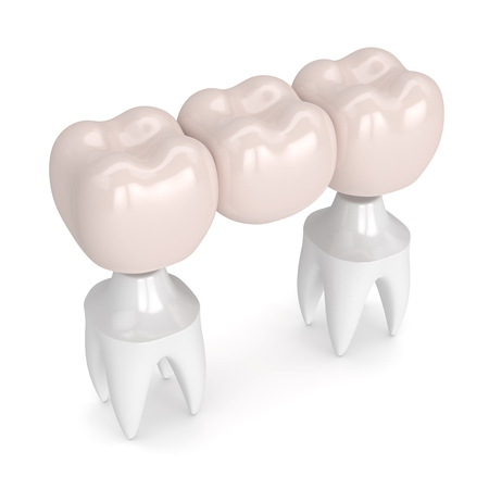 3d render of dental bridge with dental crowns isolated over white background Stock Photo