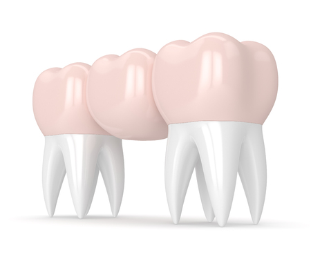 3d render of dental bridge with dental crowns isolated over white background Foto de archivo