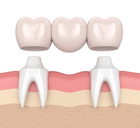 3d render of dental bridge with dental crowns in gums