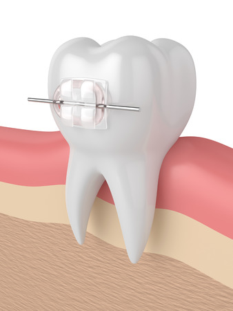 3d render of tooth with ceramic clear brace in gums