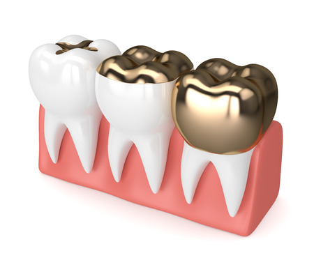 3d render of teeth with different types of dental gold filling in gums over white background Stock Photo