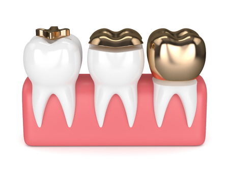 3d render of teeth with inlay, onlay and crown gold filling in gums over white background