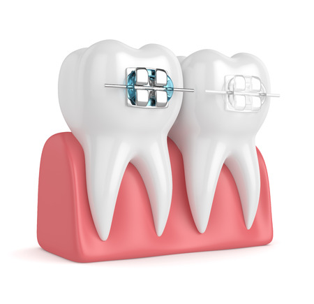 3d render of teeth with ceramic and metal braces in gums isolated over white background. The concept of comparison of two types of orthodontic braces. Stok Fotoğraf