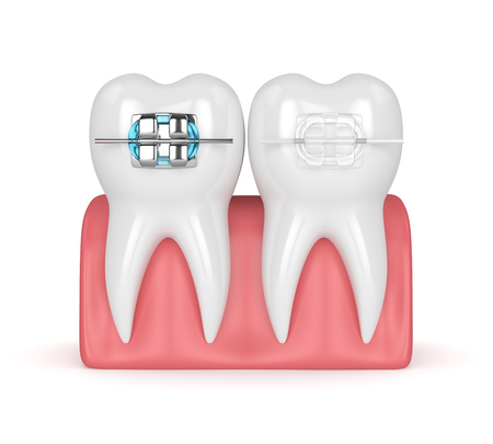 3d render of teeth with ceramic and metal braces in gums isolated over white background. The concept of comparison of two types of orthodontic braces. Archivio Fotografico