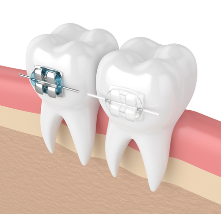 3d render of teeth with ceramic and metal braces in gums. The concept of comparison of two types of orthodontic braces. Banco de Imagens