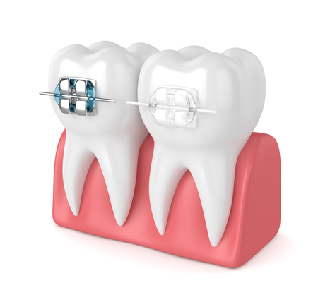 3d render of teeth with ceramic and metal braces in gums isolated over white background. The concept of comparison of two types of orthodontic braces. Stock Photo