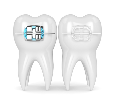 3d render of teeth with ceramic and metal braces isolated over white background. The concept of comparison of two types of orthodontic braces.