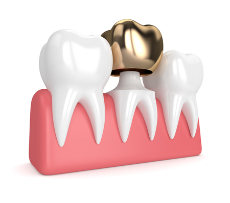 3d render of teeth with dental golden crown filling in gums over white background Stock Photo