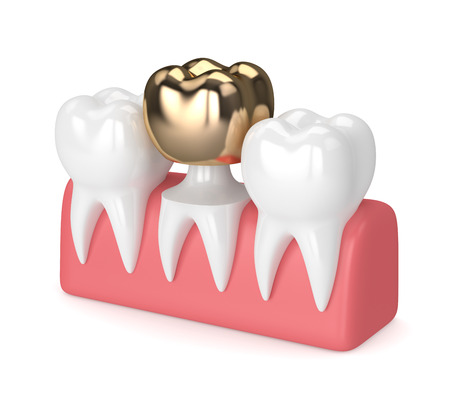 3d render of teeth with dental golden crown filling in gums over white background Archivio Fotografico