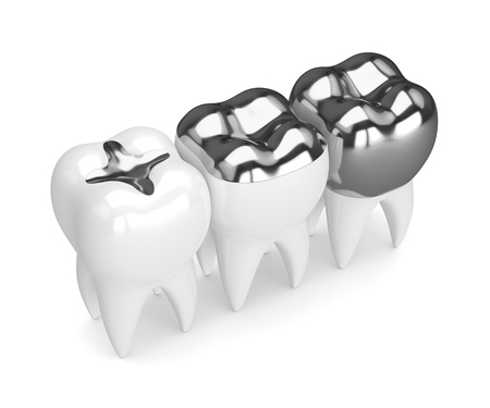 3d render of teeth with inlay, onlay and crown amalgam filling over white background 스톡 콘텐츠 - 96133813