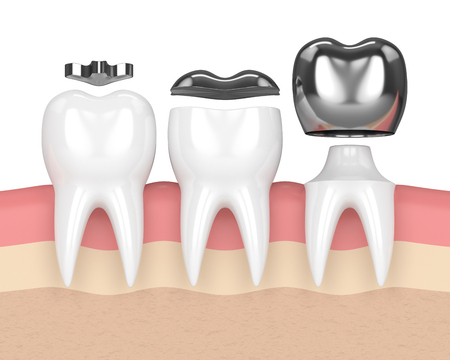 3d render of teeth with inlay, onlay and crown amalgam filling in gums