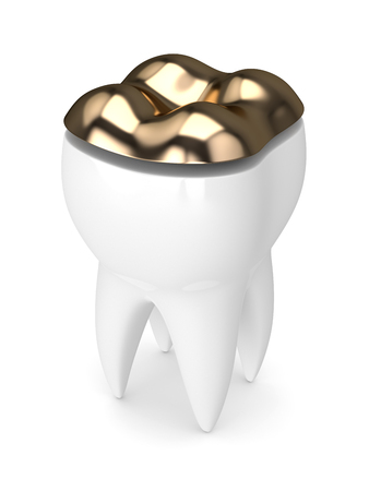3d render of tooth with dental golden onlay filling over white background 스톡 콘텐츠